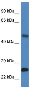 Western blot - Anti-SNX10 antibody (ab115890)