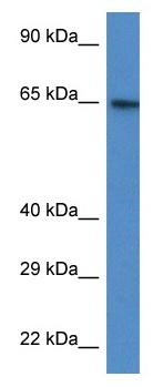 Western blot - Anti-Acetyl CoA synthetase antibody (ab115905)