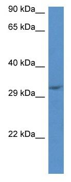 Western blot - Anti-PP14397 antibody (ab115911)