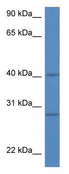 Western blot - Anti-Bif antibody (ab115916)