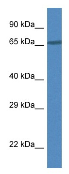 Western blot - Anti-DAK antibody (ab115919)