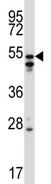 Western blot - Anti-HNRPH2 antibody (ab115971)