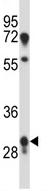 Western blot - Anti-PRR18 antibody (ab116005)