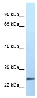 Western blot - Anti-Ephrin A2 antibody (ab116035)