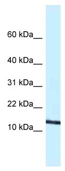 Western blot - Anti-Eotaxin antibody (ab116037)