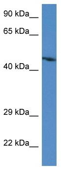 Western blot - Anti-STARS antibody (ab116046)