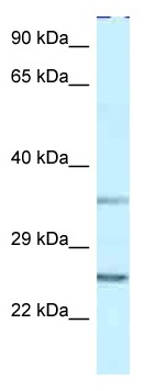 Western blot - Anti-Protein phosphatase 1 inhibitor subunit 2 antibody (ab116047)