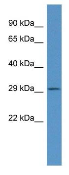 Western blot - Anti-Fndc9 antibody (ab116056)