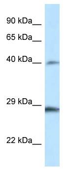 Western blot - Anti-HOXB9 antibody (ab116060)