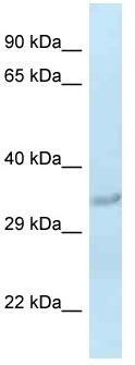Western blot - Anti-SULT1C2 antibody (ab116068)