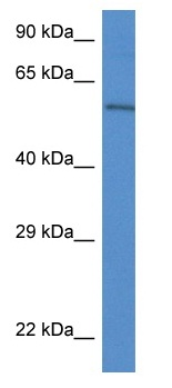 Western blot - Anti-Plxdc2 antibody (ab116079)