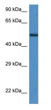 Western blot - Anti-Zfp275 antibody (ab116080)