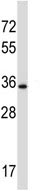 Western blot - Anti-DTX3 antibody (ab116084)