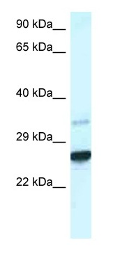 Western blot - Anti-Cdx1 antibody (ab116111)