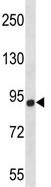 Western blot - Anti-CHSY1  antibody (ab116116)