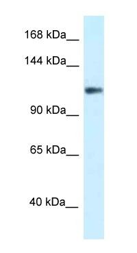 Western blot - Anti-KCNH3 antibody (ab116125)