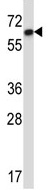 Western blot - Anti-DCTN4 antibody (ab116128)