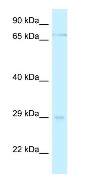 Western blot - Anti-Mesp1 antibody (ab116132)