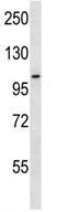 Western blot - Anti-RHBDF2 antibody (ab116139)