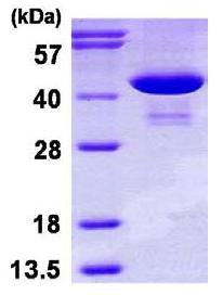 SDS-PAGE - Phosphoserine Aminotransferase protein (His tag) (ab116152)