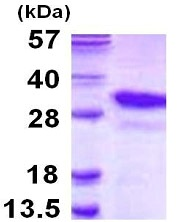 SDS-PAGE - PSMA8 protein (His tag) (ab116154)