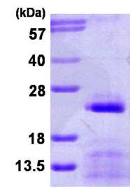SDS-PAGE - SNRPC protein (His tag) (ab116159)