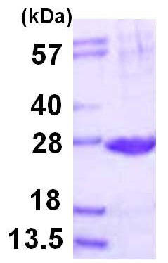 SDS-PAGE - Proteasome subunit beta type 2 protein (ab116169)