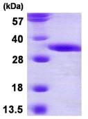 SDS-PAGE - DECR2 protein (ab116178)