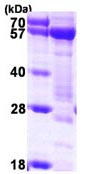 SDS-PAGE - Syntrophin alpha 1 protein (ab116180)