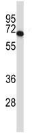 Western blot - Anti-PDILT antibody (ab116182)