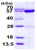 SDS-PAGE - Seryl-tRNA synthetase protein (ab116194)