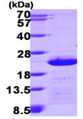 SDS-PAGE - Centrin 2 protein (ab116203)
