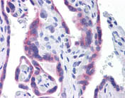Immunohistochemistry (Formalin/PFA-fixed paraffin-embedded sections) - Anti-STT3A antibody [4D4] (ab116213)