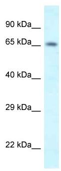 Western blot - Anti-SHKBP1 antibody (ab116218)