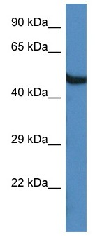 Western blot - Anti-Oasl1 antibody (ab116220)