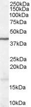 Western blot - Anti-Wnt3 antibody (ab116222)