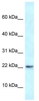 Western blot - Anti-RBM3 antibody (ab116234)