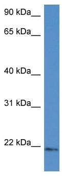 Western blot - Anti-Ube2G1 antibody (ab116243)