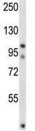 Western blot - Anti-FSTL5  antibody (ab116249)