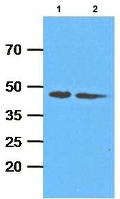 Western blot - Anti-ADK antibody [AT4F8] (ab116250)