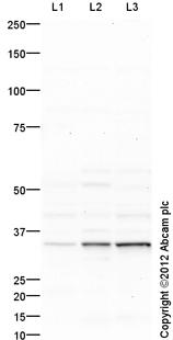 Western blot - Anti-MSI2 antibody (ab116272)