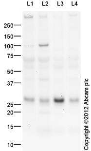 Western blot - Anti-IL37 antibody (ab116282)