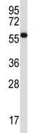 Western blot - Anti-SIN1 antibody (ab116286)