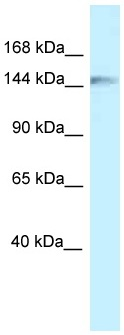 Western blot - Anti-CLIP170 antibody (ab116301)
