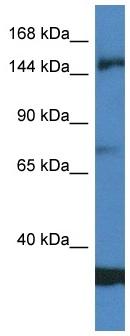 Western blot - Anti-EIF5B antibody (ab116304)