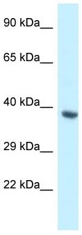Western blot - Anti-BCL2L12 antibody (ab116311)