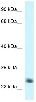 Western blot - Anti-NDUFS8 antibody (ab116327)