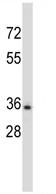 Western blot - Anti-Elastase antibody (ab116331)
