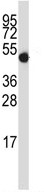 Western blot - Anti-GDI2 antibody (ab116333)