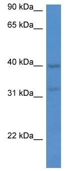 Western blot - Anti-Melatonin Receptor 1A antibody (ab116337)